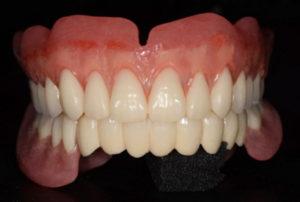 入れ歯(義歯)治療を検討されている患者さんへ